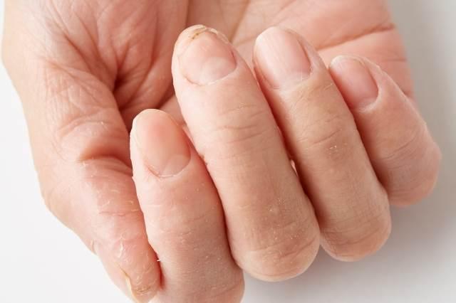 爪トラブル